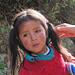 La bambina ha un eczema sulle guance, probabilmente dovuto alla sporcizia